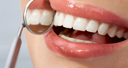 essay on caring your teeth
